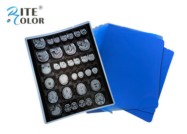 PET Base X Ray Sheet Film Radiology Imaging Film Untuk DR CT 100 Sheets Per Pack