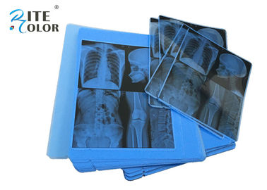 Radiologi Blue X Ray Medical Imaging Film 210um Tebal Untuk Printer Inkjet Epson